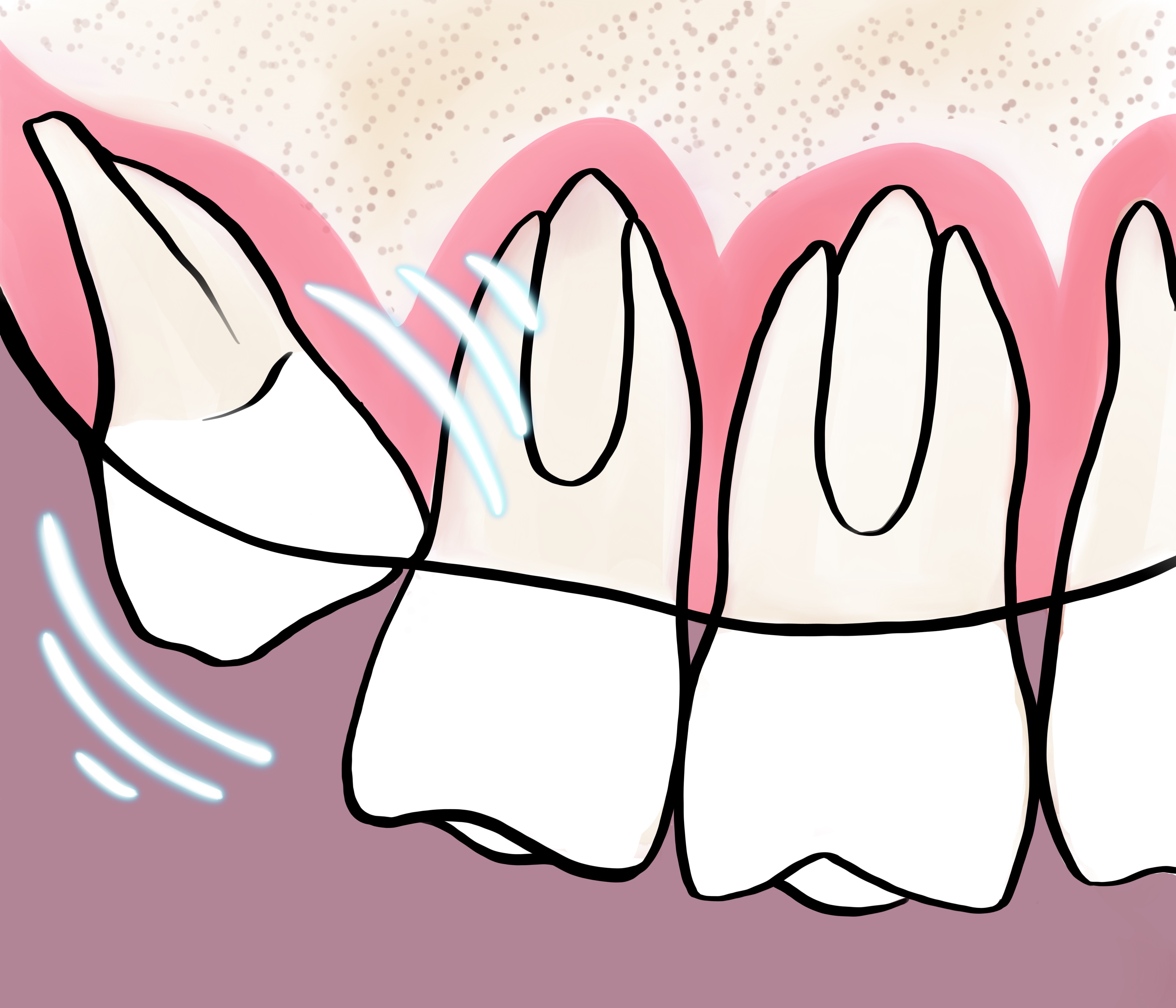 Картинки мудрых зубов