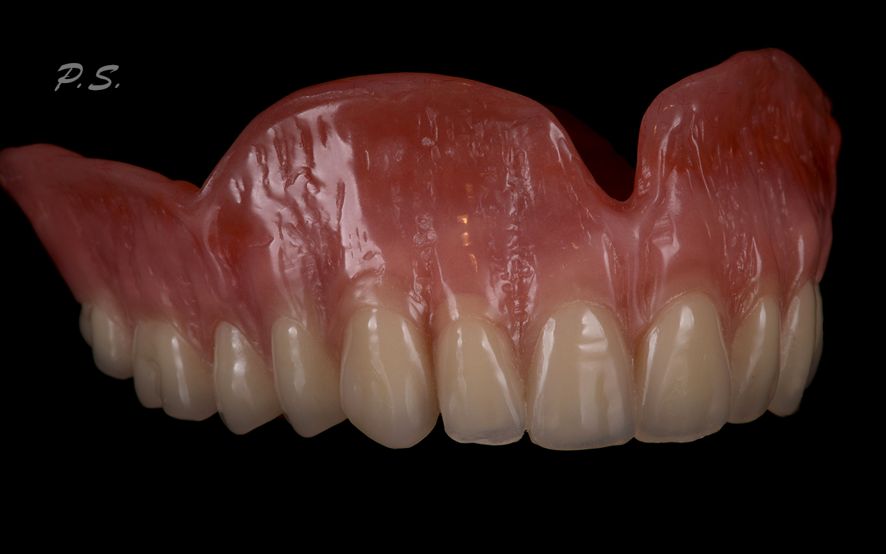Акри фри зубные протезы картинки